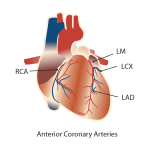 cardio arterial illustrations