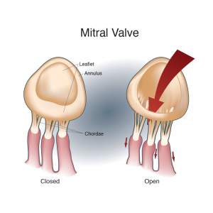 cardio, arterial, illustration