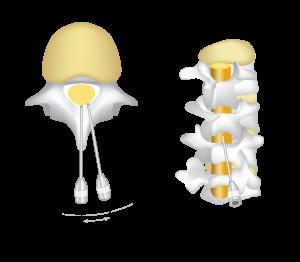 epidural, insertion, angle
