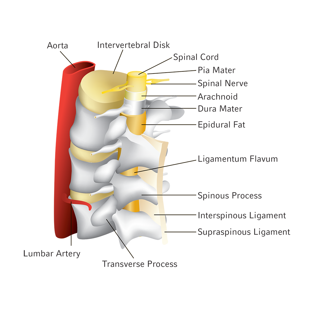 Spinal Epidural Illustration Epidural Procedure And Technique