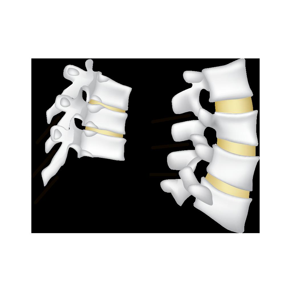 punchline, spinal, epidural